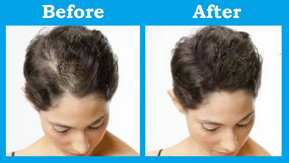 Nuhair 5minoxidil Spray Hair Loss Beard Scalp Regrowth Alopecia Men